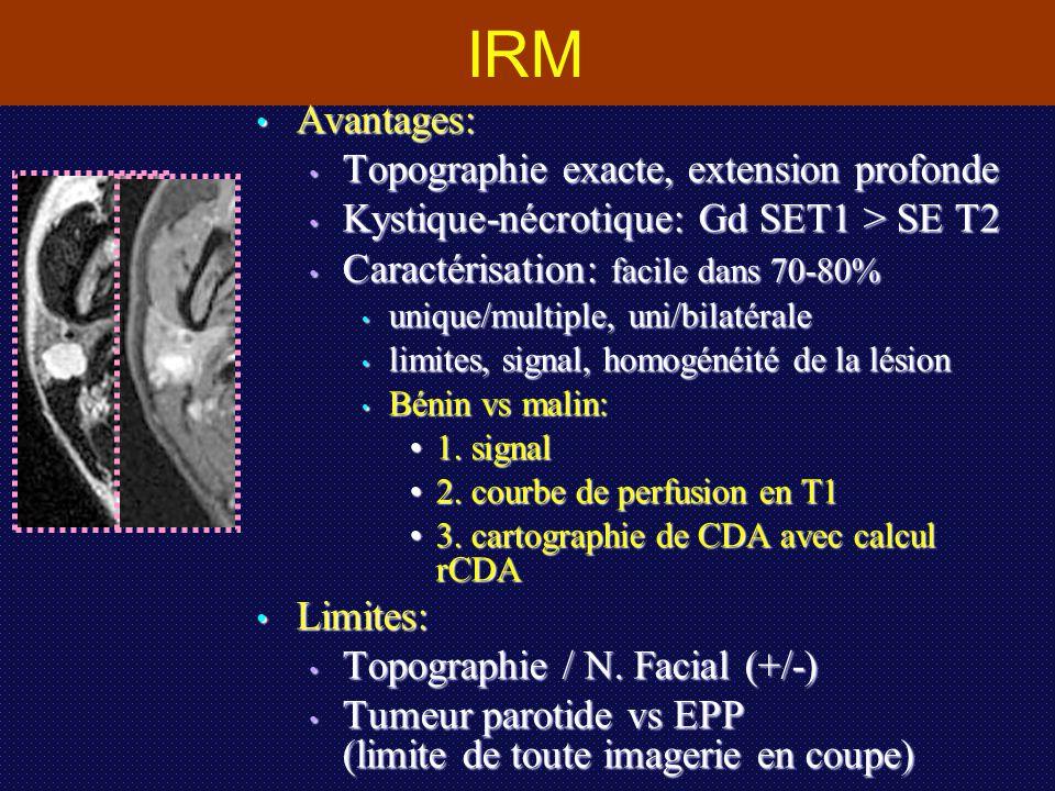 IRM Avantages: Avantages: Topographie exacte, extension profonde Topographie exacte, extension profonde Kystique-nécrotique: Gd SET1 > SE T2 Kystique-