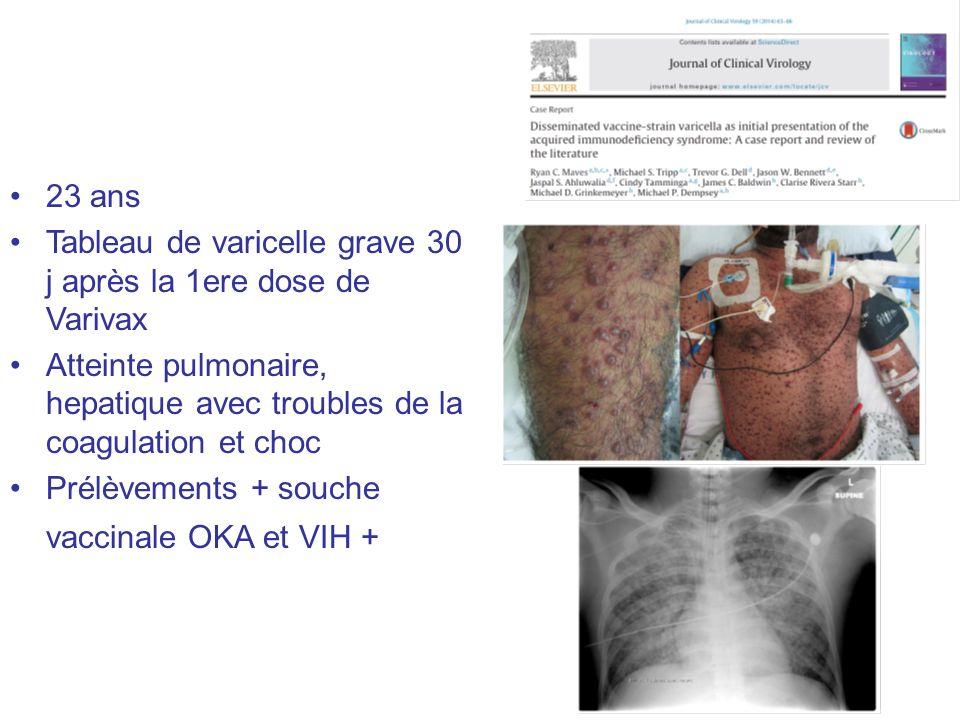 23 ans Tableau de varicelle grave 30 j après la 1ere dose de Varivax Atteinte pulmonaire, hepatique avec troubles de la coagulation et choc Prélèvemen