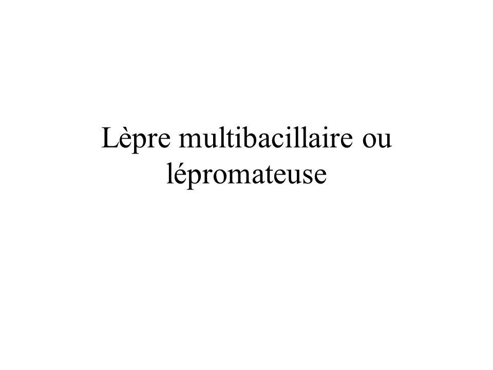Lèpre multibacillaire ou lépromateuse