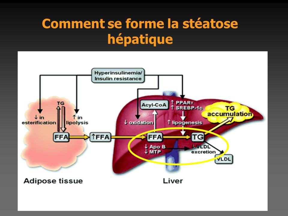 Comment se forme la stéatose hépatique