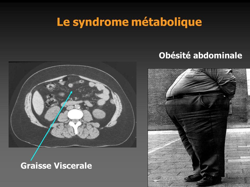 Le syndrome métabolique Graisse Viscerale Obésité abdominale
