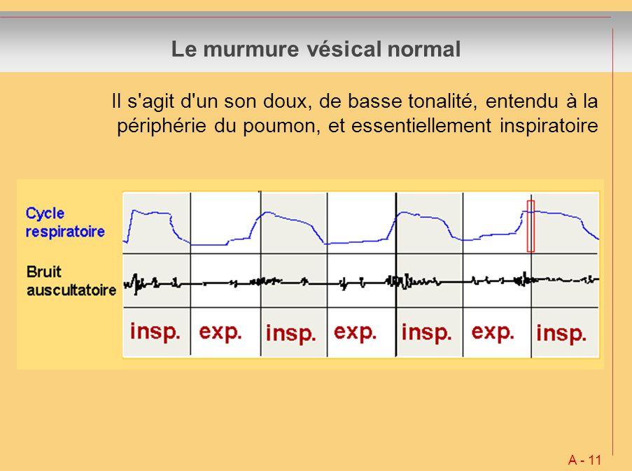 Le murmure vésical normal Il s'agit d'un son doux, de basse tonalité, entendu à la périphérie du poumon, et essentiellement inspiratoire A - 11