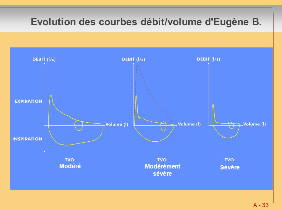 Evolution des courbes débit/volume d'Eugène B. A - 33 Modéré Modérément sévère Sévère