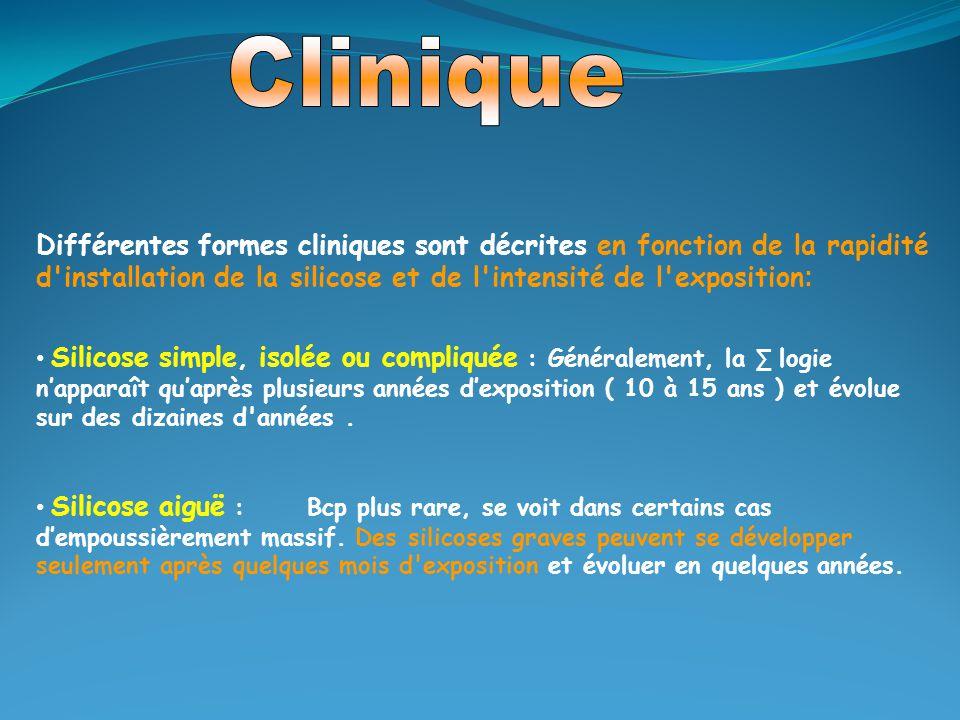 Différentes formes cliniques sont décrites en fonction de la rapidité d'installation de la silicose et de l'intensité de l'exposition : Silicose simpl