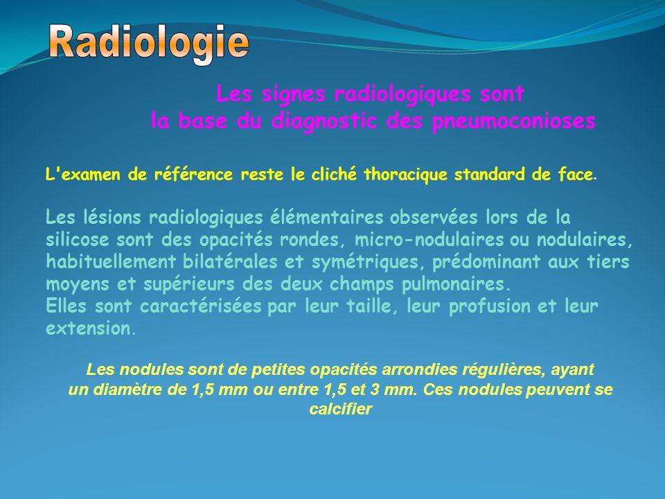 Les signes radiologiques sont la base du diagnostic des pneumoconioses L'examen de référence reste le cliché thoracique standard de face. Les lésions
