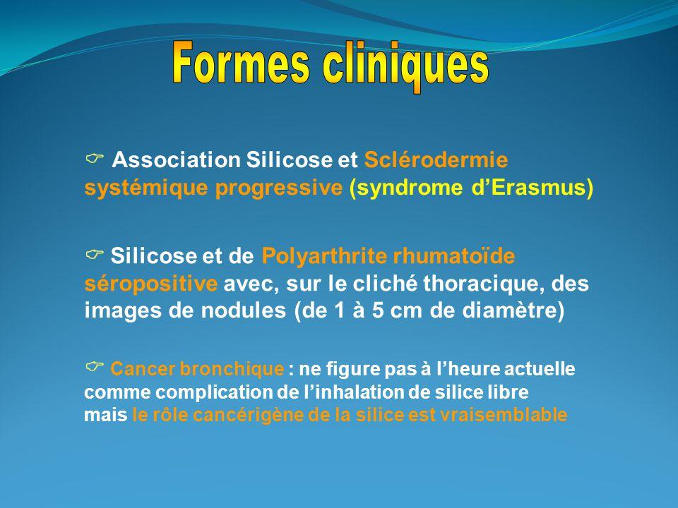  Association Silicose et Sclérodermie systémique progressive (syndrome d'Erasmus)  Silicose et de Polyarthrite rhumatoïde séropositive avec, sur le