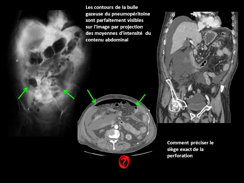 Comment préciser le siège exact de la perforation Les contours de la bulle gazeuse du pneumopéritoine sont parfaitement visibles sur l image par projection des moyennes d intensité du contenu abdominal