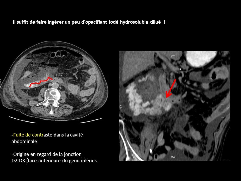 -Fuite de contraste dans la cavité abdominale -Origine en regard de la jonction D2-D3 (face antérieure du genu inferius Il suffit de faire ingérer un peu d opacifiant iodé hydrosoluble dilué !