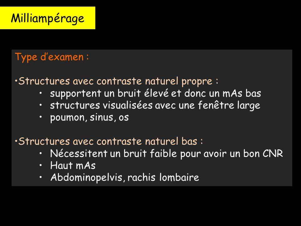 Milliampérage Type d'examen : Structures avec contraste naturel propre : supportent un bruit élevé et donc un mAs bas structures visualisées avec une