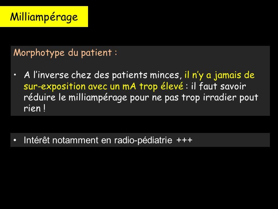 Milliampérage Morphotype du patient : A l'inverse chez des patients minces, il n'y a jamais de sur-exposition avec un mA trop élevé : il faut savoir r