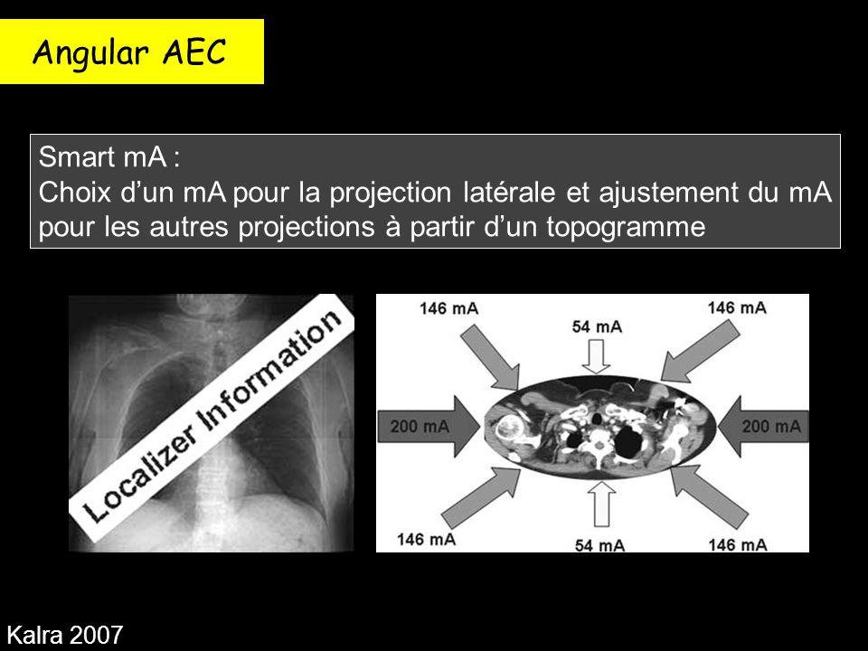 Angular AEC Kalra 2007 Smart mA : Choix d'un mA pour la projection latérale et ajustement du mA pour les autres projections à partir d'un topogramme