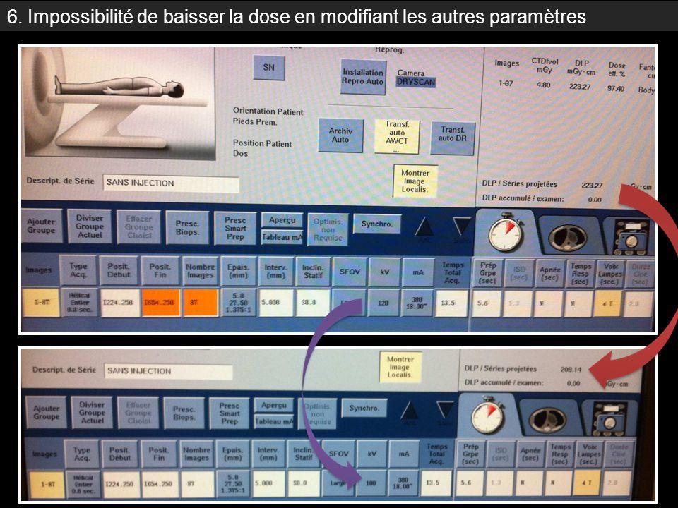 6. Impossibilité de baisser la dose en modifiant les autres paramètres Modification kV avec IB stable : meme dose !!!