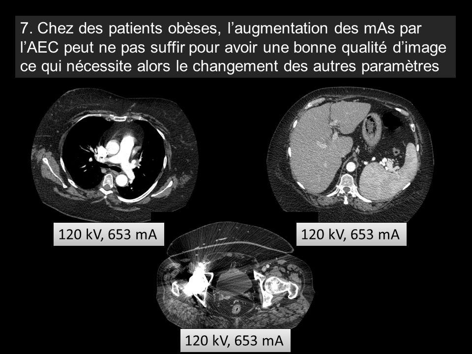 120 kV, 653 mA 7. Chez des patients obèses, l'augmentation des mAs par l'AEC peut ne pas suffir pour avoir une bonne qualité d'image ce qui nécessite