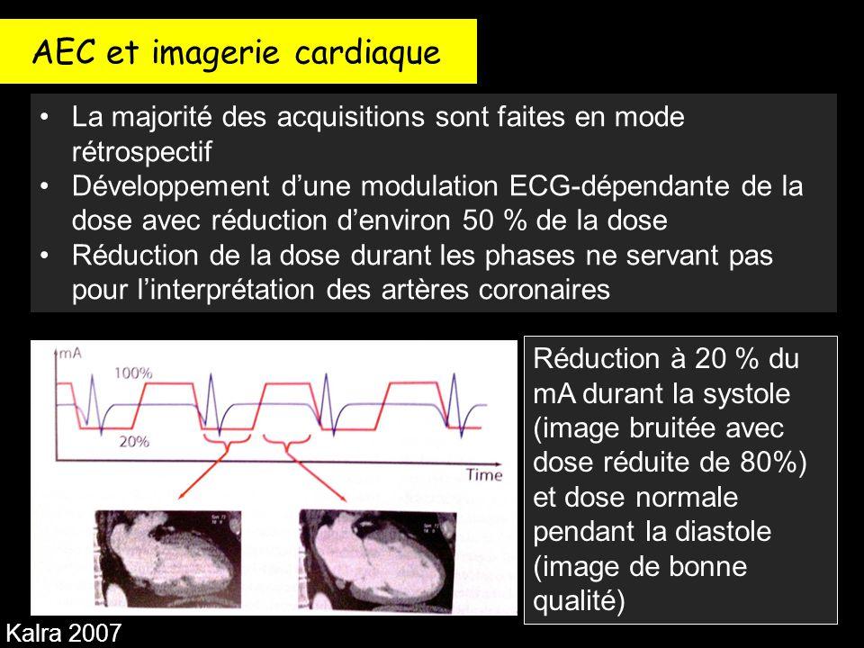 AEC et imagerie cardiaque La majorité des acquisitions sont faites en mode rétrospectif Développement d'une modulation ECG-dépendante de la dose avec