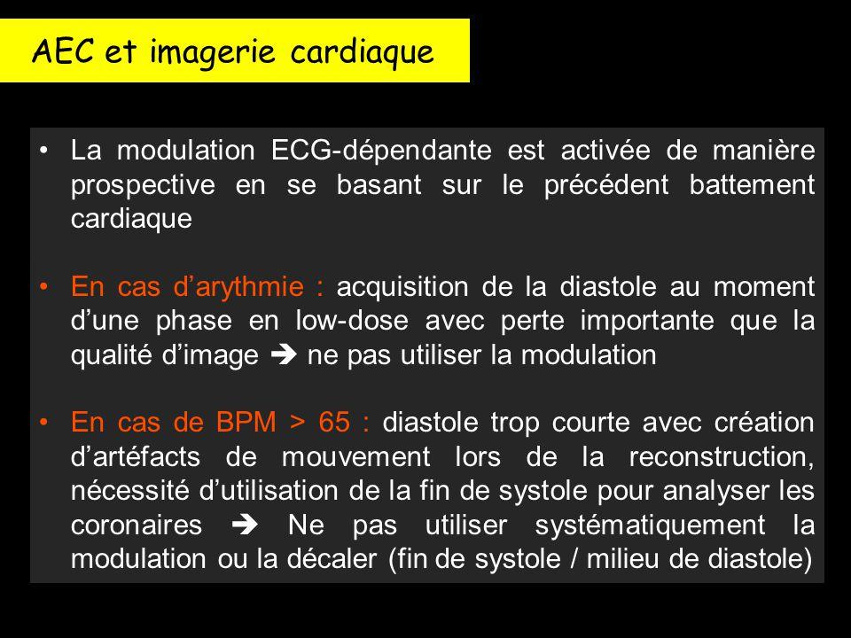 La modulation ECG-dépendante est activée de manière prospective en se basant sur le précédent battement cardiaque En cas d'arythmie : acquisition de l