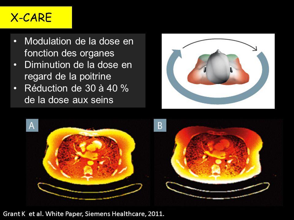 X-CARE Modulation de la dose en fonction des organes Diminution de la dose en regard de la poitrine Réduction de 30 à 40 % de la dose aux seins Grant