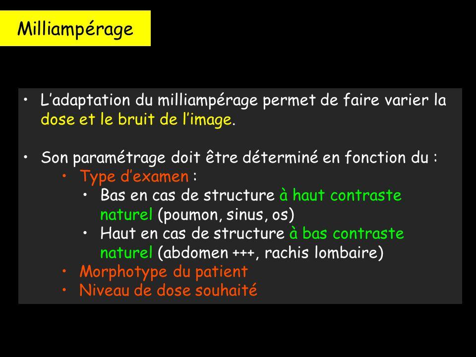 Milliampérage L'adaptation du milliampérage permet de faire varier la dose et le bruit de l'image. Son paramétrage doit être déterminé en fonction du