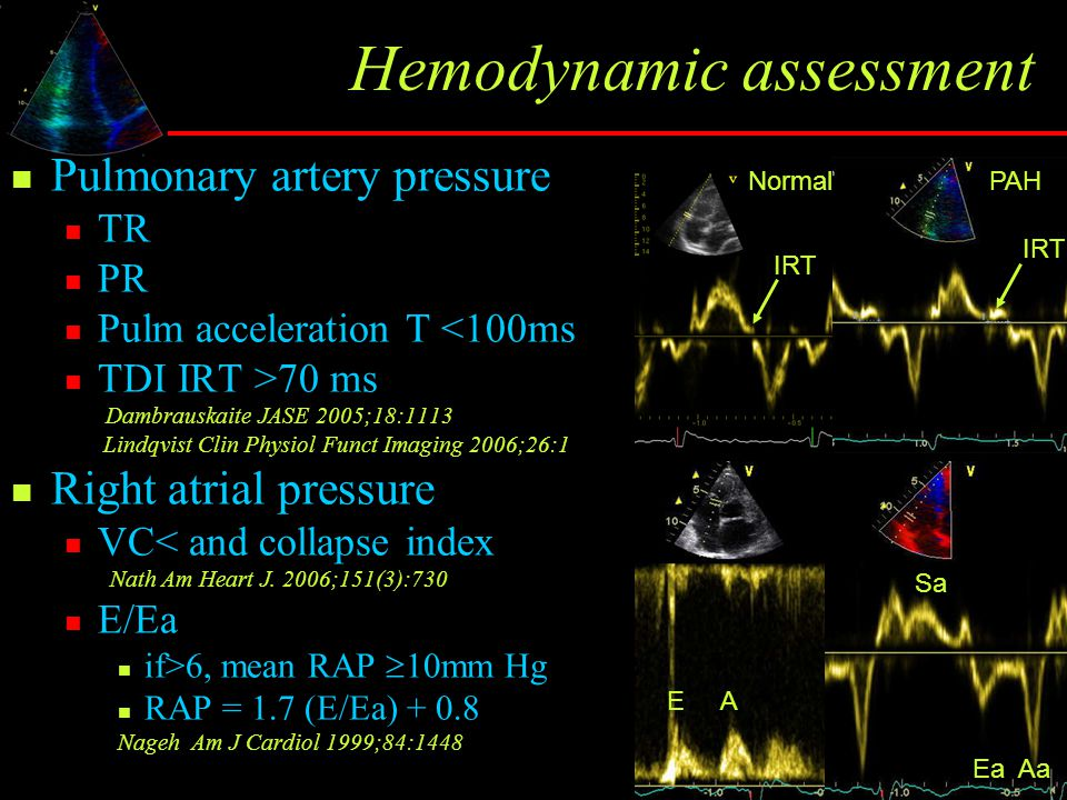 Hemodynamic assessment Pulmonary artery pressure TR PR Pulm acceleration T <100ms TDI IRT >70 ms Dambrauskaite JASE 2005;18:1113 Lindqvist Clin Physiol Funct Imaging 2006;26:1 Right atrial pressure VC< and collapse index Nath Am Heart J.
