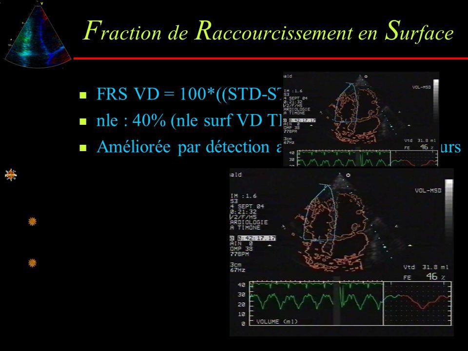 F raction de R accourcissement en S urface FRS VD = 100*((STD-STS)/STD) ; nle : 40% (nle surf VD TD : 14 ±2 cm²/m²) Améliorée par détection automatiqu