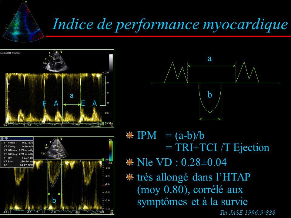 Indice de performance myocardique a b E A E A IPM = (a-b)/b = TRI+TCI /T Ejection Nle VD : 0.28±0.04 très allongé dans l'HTAP (moy 0.80), corrélé aux