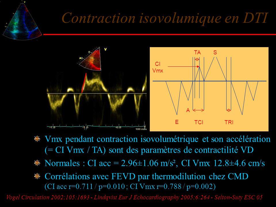 Contraction isovolumique en DTI Vmx pendant contraction isovolumétrique et son accélération (= CI Vmx / TA) sont des paramètres de contractilité VD No