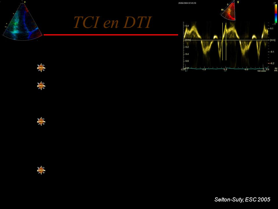 Selton-Suty, ESC 2005 TCI en DTI 22 pts atteints d'HTAP Corrélations écho-hémodynamiques TCI acc VDTCI Vmx VD PAP moy r 0.608 0.599 p0.0030.004 RVPr 0