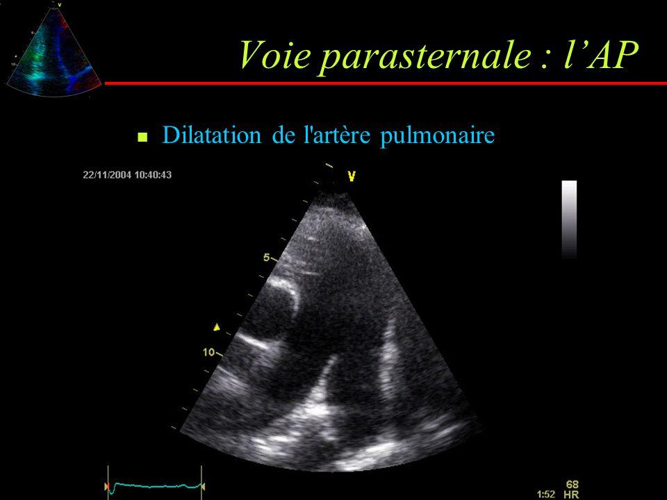 Voie parasternale : l'AP Dilatation de l'artère pulmonaire