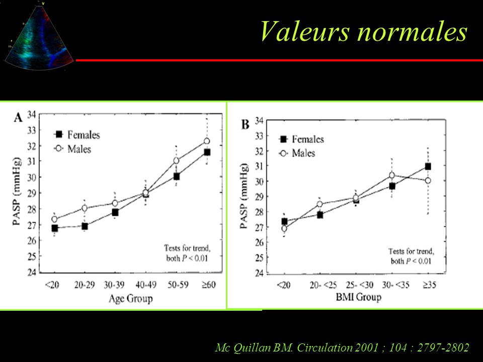 Valeurs normales Mc Quillan BM. Circulation 2001 ; 104 : 2797-2802