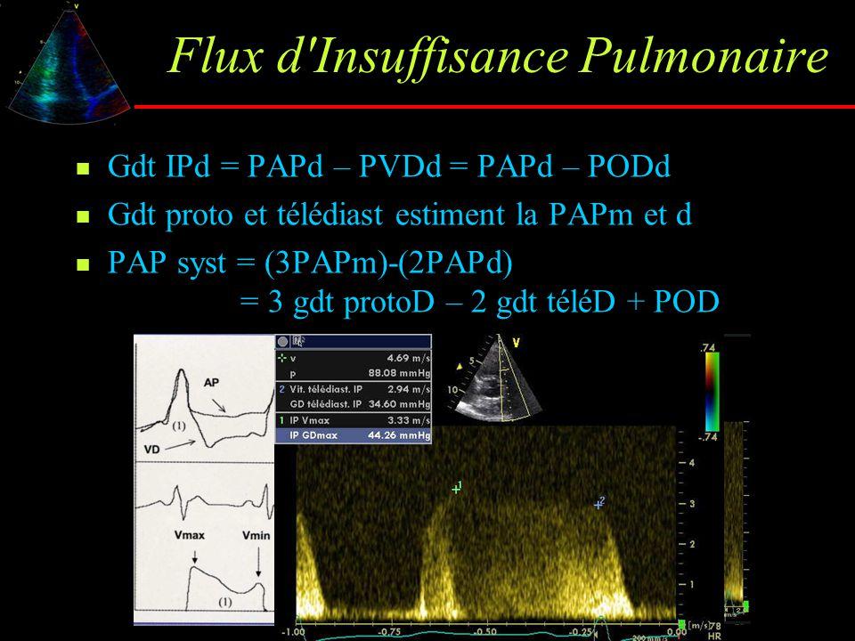 Flux d'Insuffisance Pulmonaire Gdt IPd = PAPd – PVDd = PAPd – PODd Gdt proto et télédiast estiment la PAPm et d PAP syst = (3PAPm)-(2PAPd) = 3 gdt pro