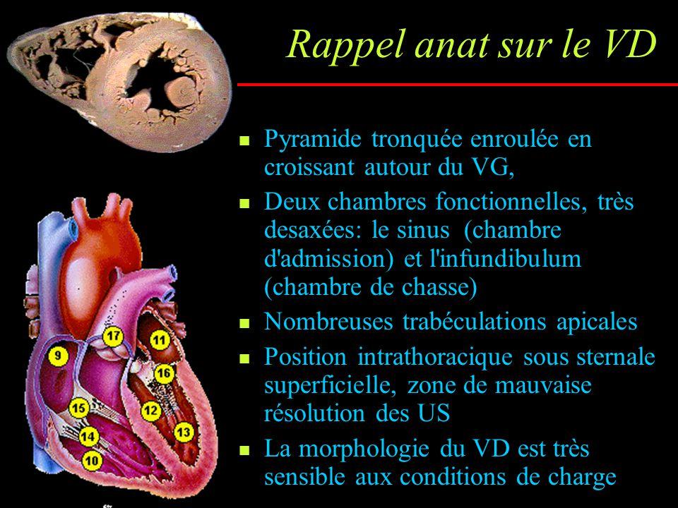 Interdépendance ventriculaire Les 2 ventricules fonctionnent en série, partagent des fibres myocardiques communes et sont dans le même sac péricardique, donc sont très dépendants l'un de l'autre La contraction du VG (surtout du SIV) intervient dans au moins 20 à 40% de la pression et du débit générés par le VD Fonction et hémodynamique VG FEVG Pressions de remplissage VG E/A, Temps de décélération E Vp E/Ea Flux veineux pulmonaire Débit aortique