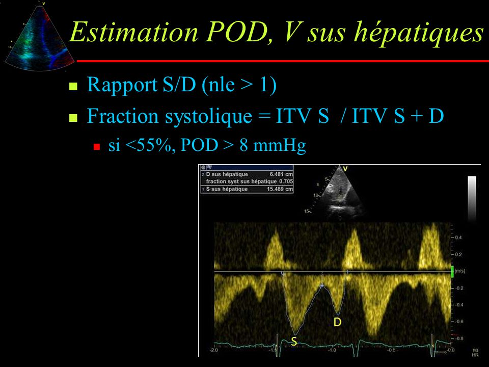 Estimation POD, V sus hépatiques Rapport S/D (nle > 1) Fraction systolique = ITV S / ITV S + D si 8 mmHg