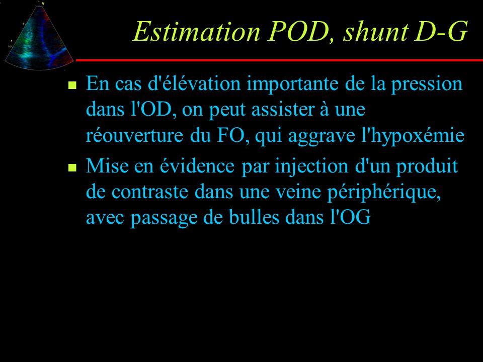 Estimation POD, shunt D-G En cas d'élévation importante de la pression dans l'OD, on peut assister à une réouverture du FO, qui aggrave l'hypoxémie Mi