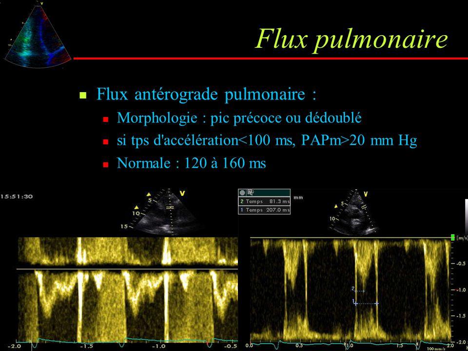 Flux pulmonaire Flux antérograde pulmonaire : Morphologie : pic précoce ou dédoublé si tps d'accélération 20 mm Hg Normale : 120 à 160 ms