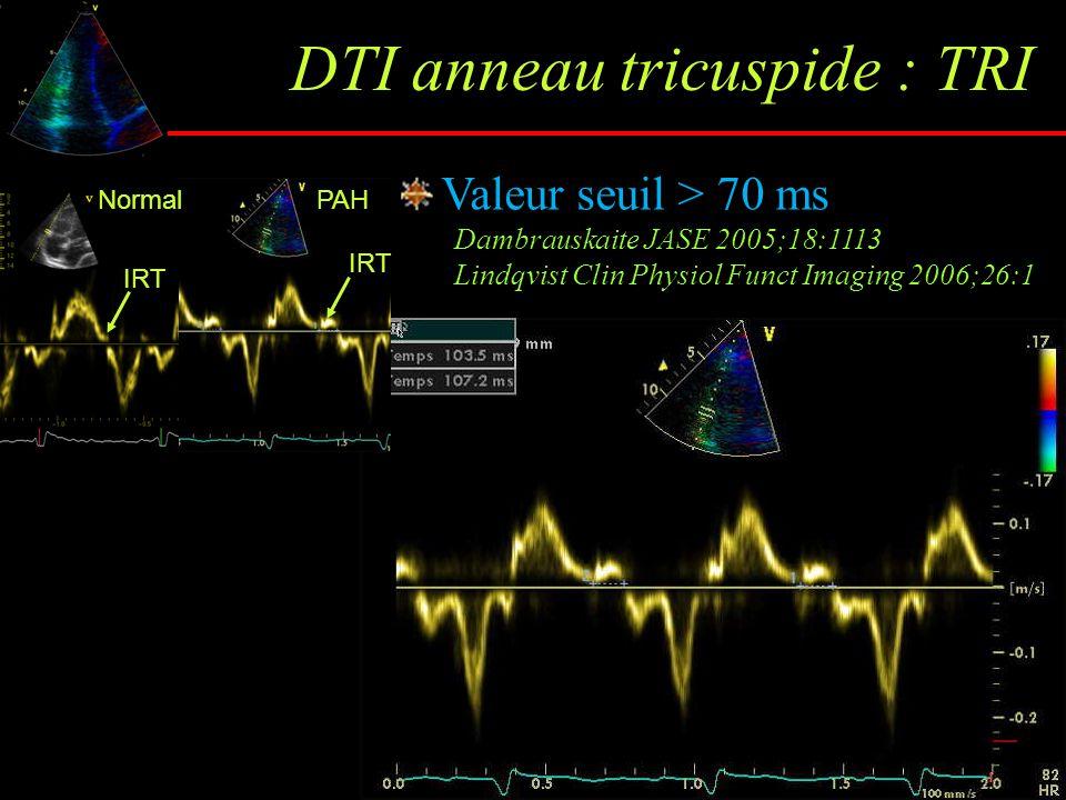DTI anneau tricuspide : TRI Valeur seuil > 70 ms Dambrauskaite JASE 2005;18:1113 Lindqvist Clin Physiol Funct Imaging 2006;26:1 NormalPAH IRT