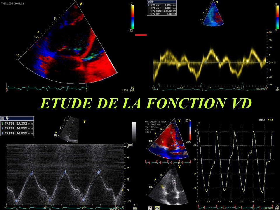ETUDE DE LA FONCTION VD