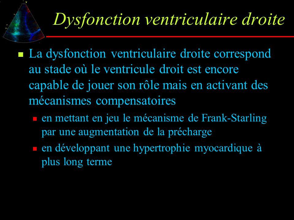 Dysfonction ventriculaire droite La dysfonction ventriculaire droite correspond au stade où le ventricule droit est encore capable de jouer son rôle m