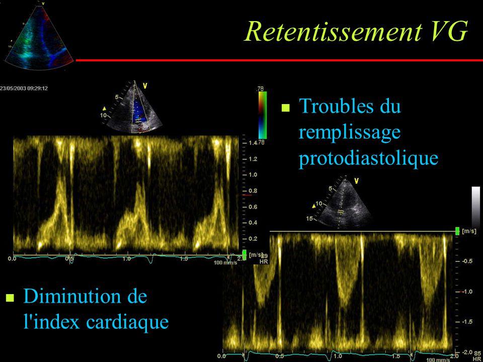 Retentissement VG Diminution de l'index cardiaque Troubles du remplissage protodiastolique