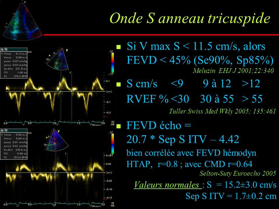 Onde S anneau tricuspide Si V max S < 11.5 cm/s, alors FEVD < 45% (Se90%, Sp85%) Meluzin EHJ J 2001;22:340 S cm/s 12 RVEF % 55 Tuller Swiss Med Wkly 2