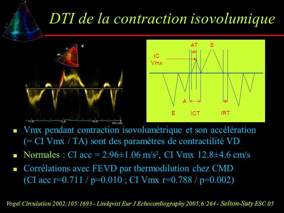 DTI de la contraction isovolumique Vmx pendant contraction isovolumétrique et son accélération (= CI Vmx / TA) sont des paramètres de contractilité VD