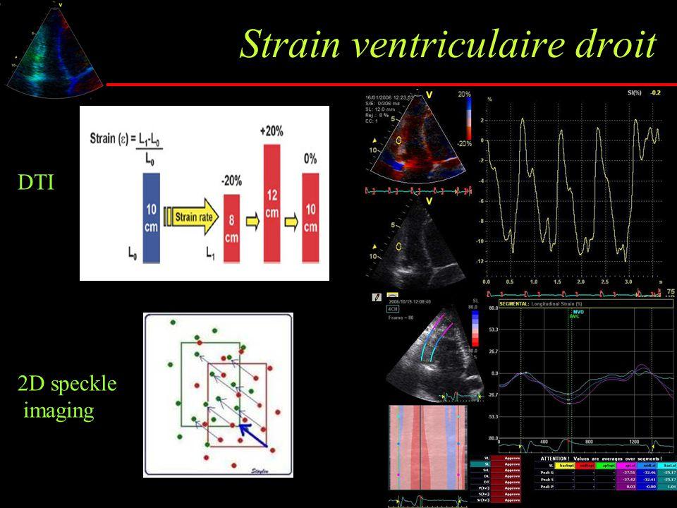 Strain ventriculaire droit 2D speckle imaging DTI
