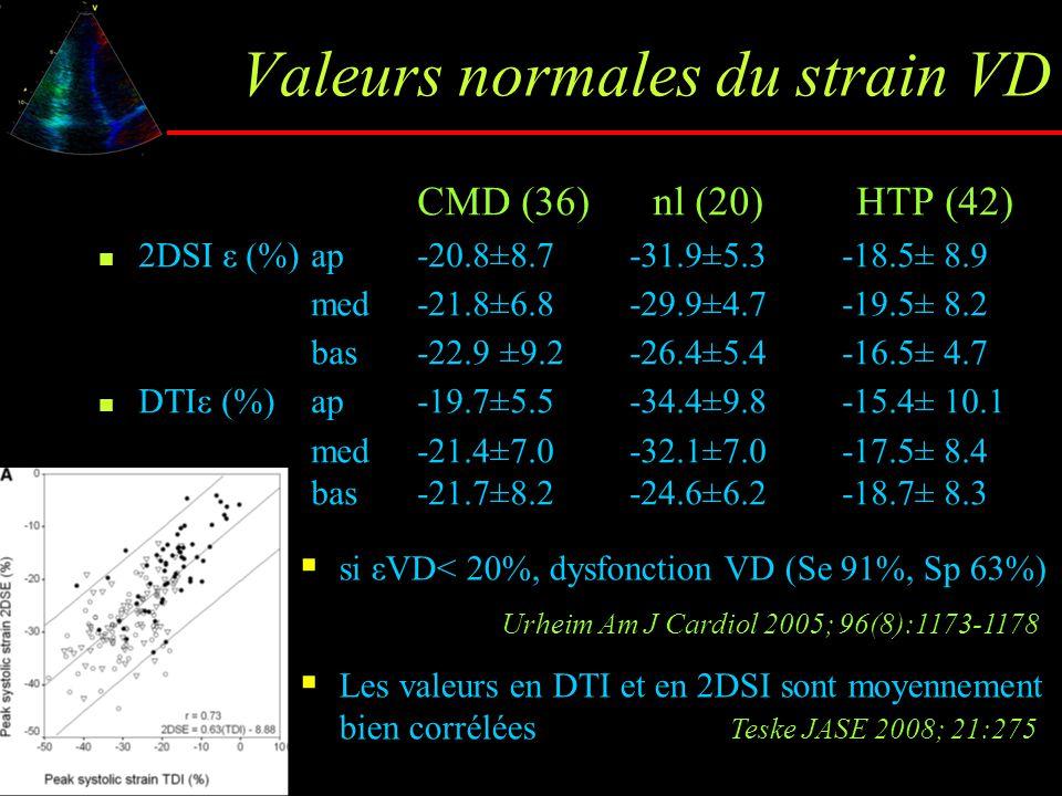 Valeurs normales du strain VD CMD (36) nl (20) HTP (42) 2DSI ε (%)ap-20.8±8.7-31.9±5.3-18.5± 8.9 med-21.8±6.8-29.9±4.7-19.5± 8.2 bas-22.9 ±9.2-26.4±5.