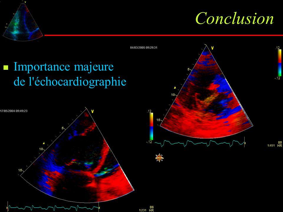 Conclusion Importance majeure de l'échocardiographie dans la prise en charge de l'HTAP et dans le suivi