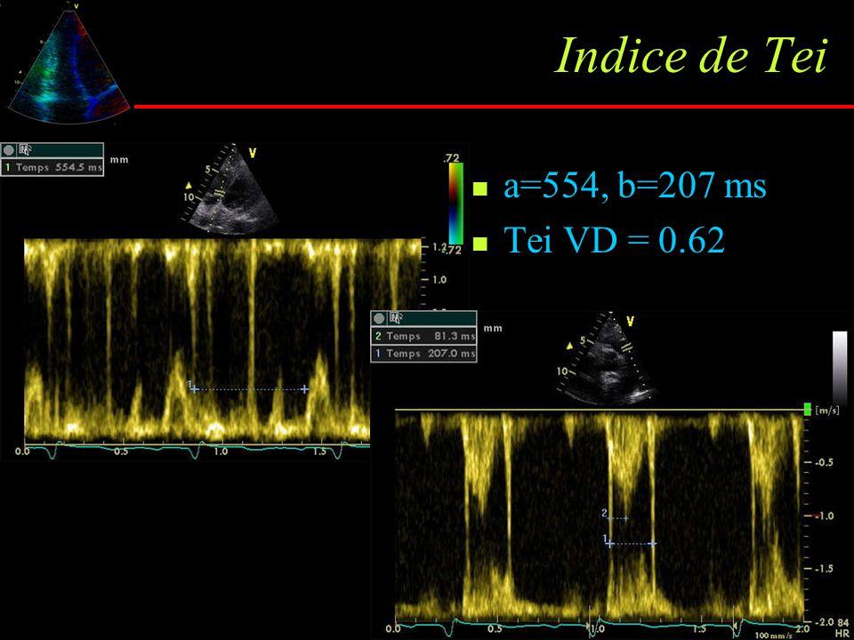 Indice de Tei a=554, b=207 ms Tei VD = 0.62 Nle : 0.28 ± 0.04 HTAPP : 0.83