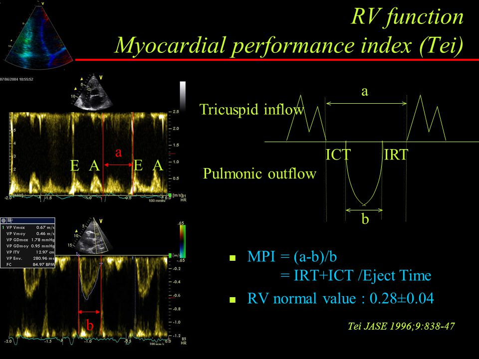 RV function Myocardial performance index (Tei) MPI= (a-b)/b = IRT+ICT /Eject Time RV normal value : 0.28±0.04 Tei JASE 1996;9:838-47 a b E A E A a a b