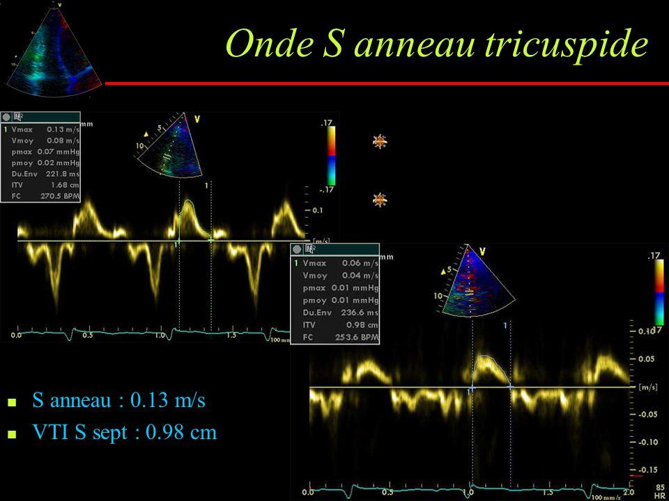 Onde S anneau tricuspide S anneau : 0.13 m/s VTI S sept : 0.98 cm Si V max S< 11.5 cm/s, FE VD < 45% VTI nl : 1.2±0.4 cm VTI HTAP : 0.5±0.2 cm