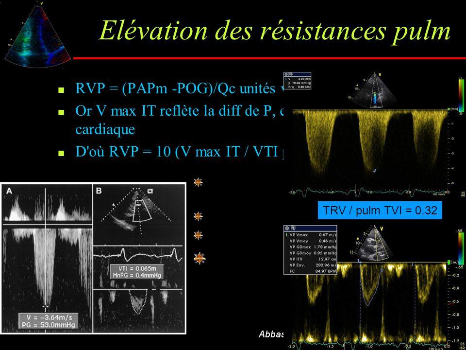 Elévation des résistances pulm RVP = (PAPm -POG)/Qc unités woods Or V max IT reflète la diff de P, et VTI pulm le débit cardiaque D'où RVP = 10 (V max