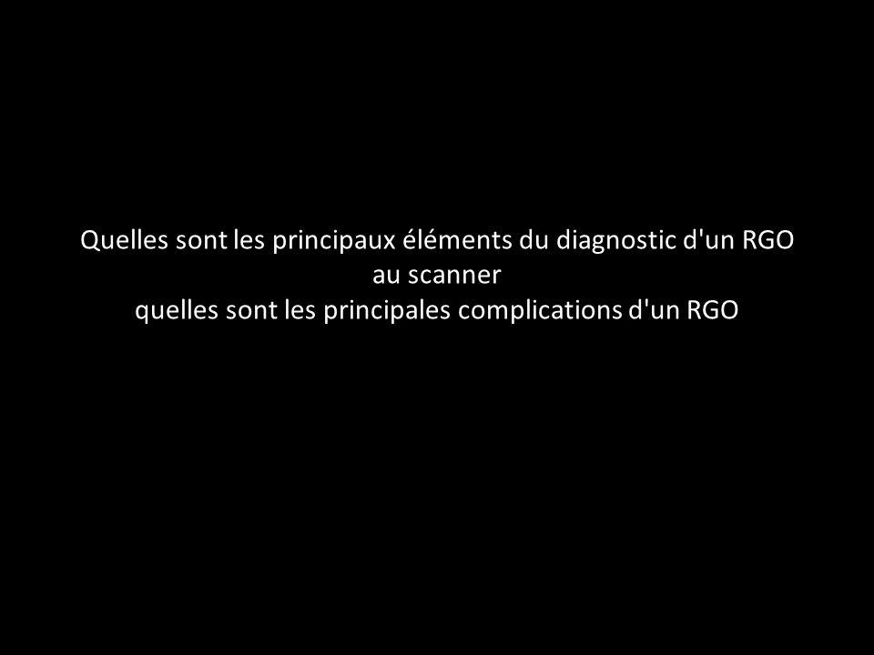 Quelles sont les principaux éléments du diagnostic d'un RGO au scanner quelles sont les principales complications d'un RGO