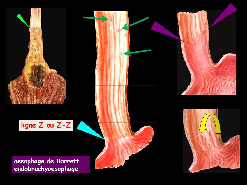 ligne Z ou Z-Z oesophage de Barrett endobrachyoesophage