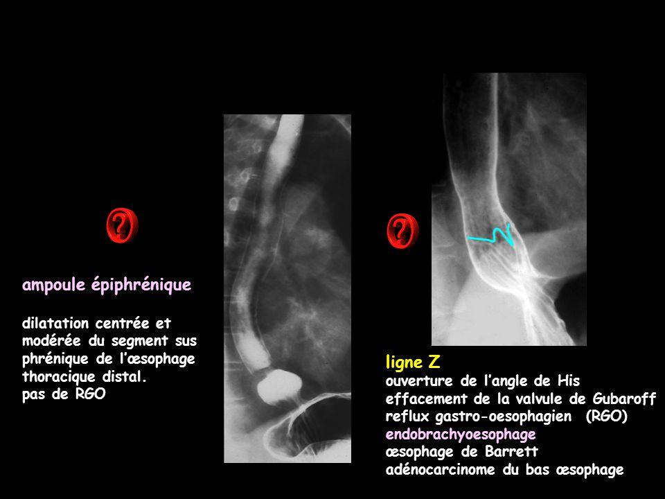 ampoule épiphrénique dilatation centrée et modérée du segment sus phrénique de l'œsophage thoracique distal. pas de RGO ligne Z ouverture de l'angle d