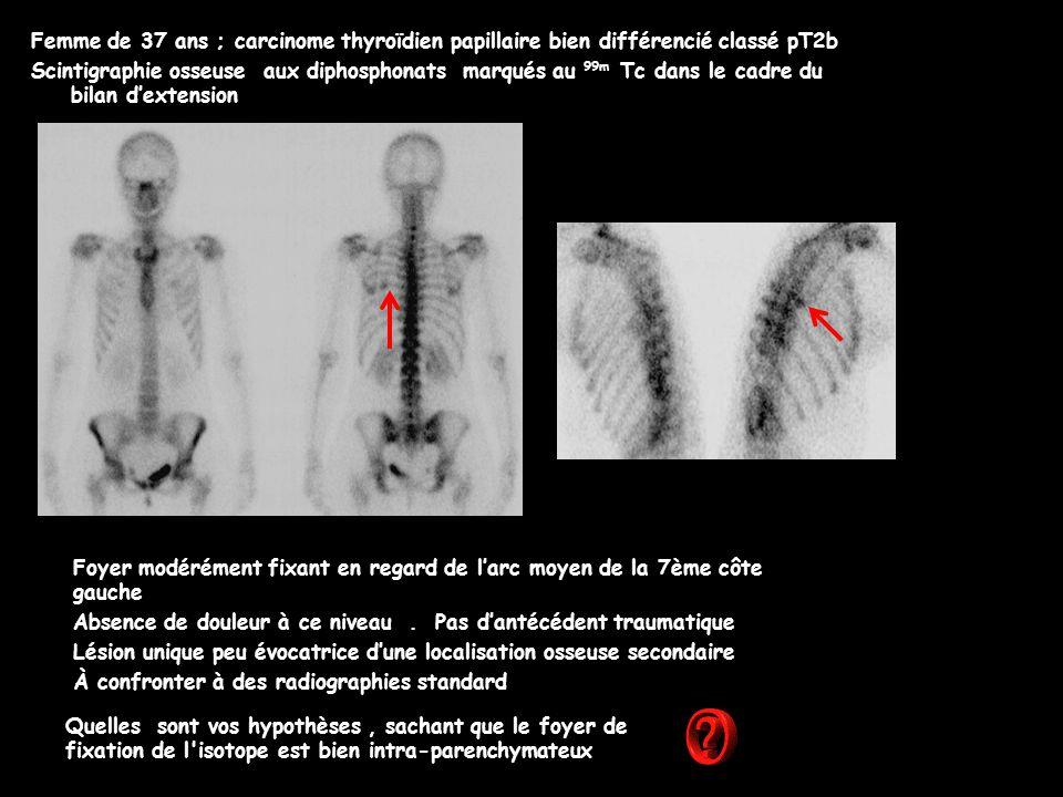 Femme de 37 ans ; carcinome thyroïdien papillaire bien différencié classé pT2b Scintigraphie osseuse aux diphosphonats marqués au 99m Tc dans le cadre